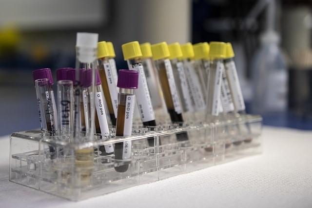 CAR-T, terapia génica y medicina personalizada, los últimos avances en Hematología.