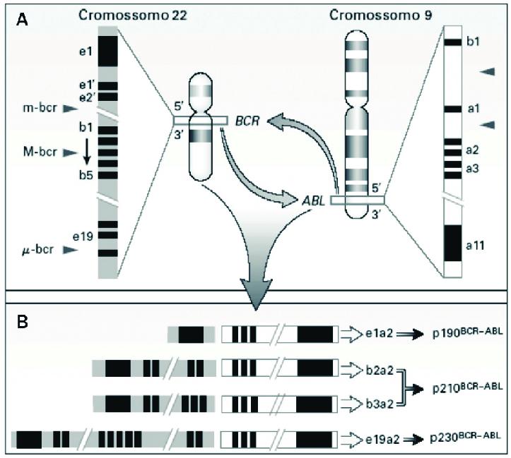 Clínicas y significación del pronostico de la leucemia mieloide crónica con transcritos raros de BCR-ABL1